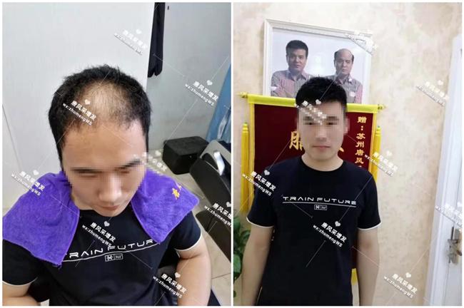 脂溢性脱发的顾先生手工制作假发