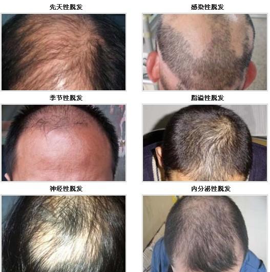各种脱发原因