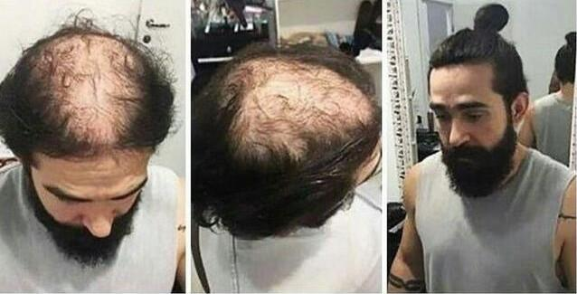 秃顶发型设计