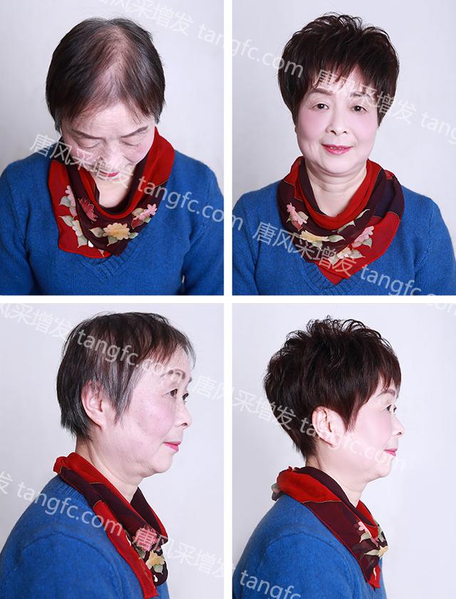 短发比较遮白发减龄