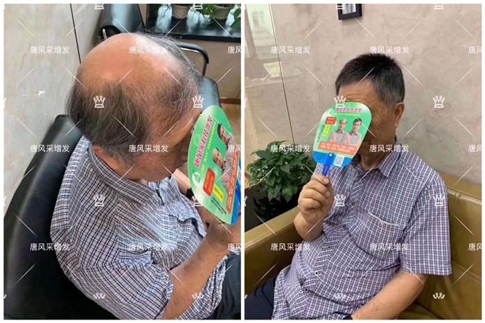 设计匹配的中老年男士假发