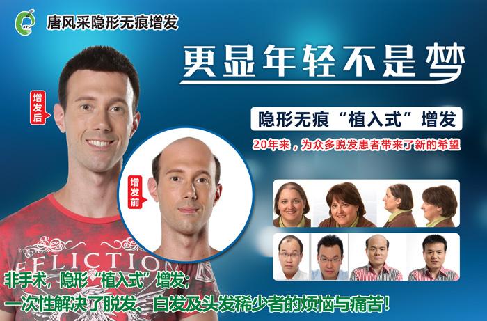 有脱发掉发困扰可以通过男老年假发套变年轻