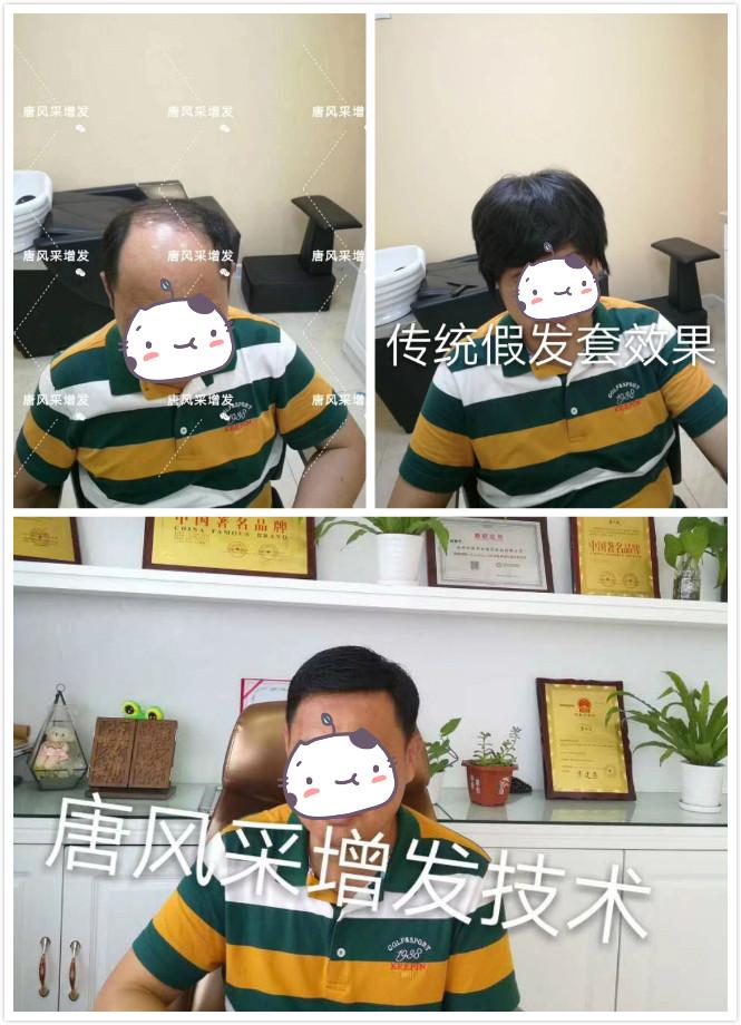 传统假发套跟定做假发的区别
