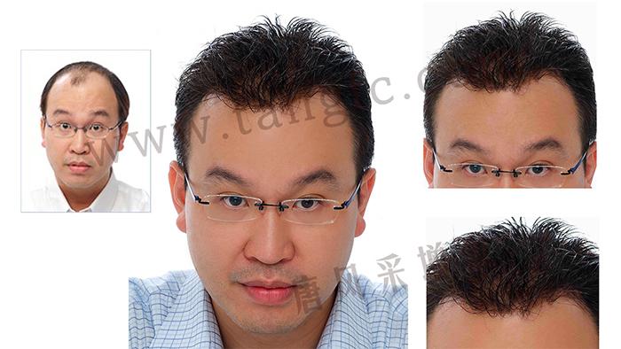 如果你hold不住谢顶,可以来试试真人头发的假发